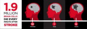 Jutaan sel otak mati bila tak segera mendapat penanganan medis.